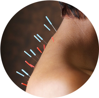 acupuncture-small